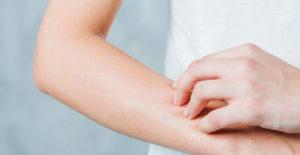 como cuidar pieles atópicas